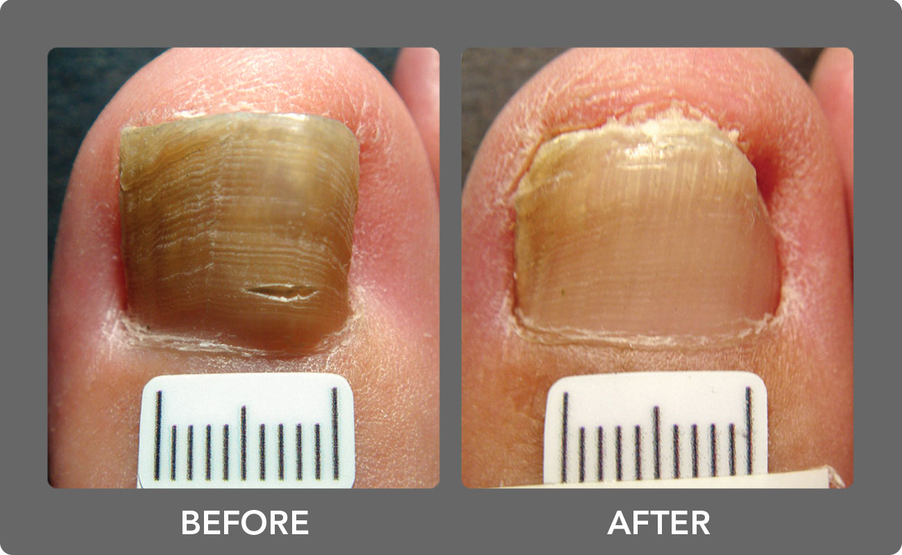 topical nail fungus treatment