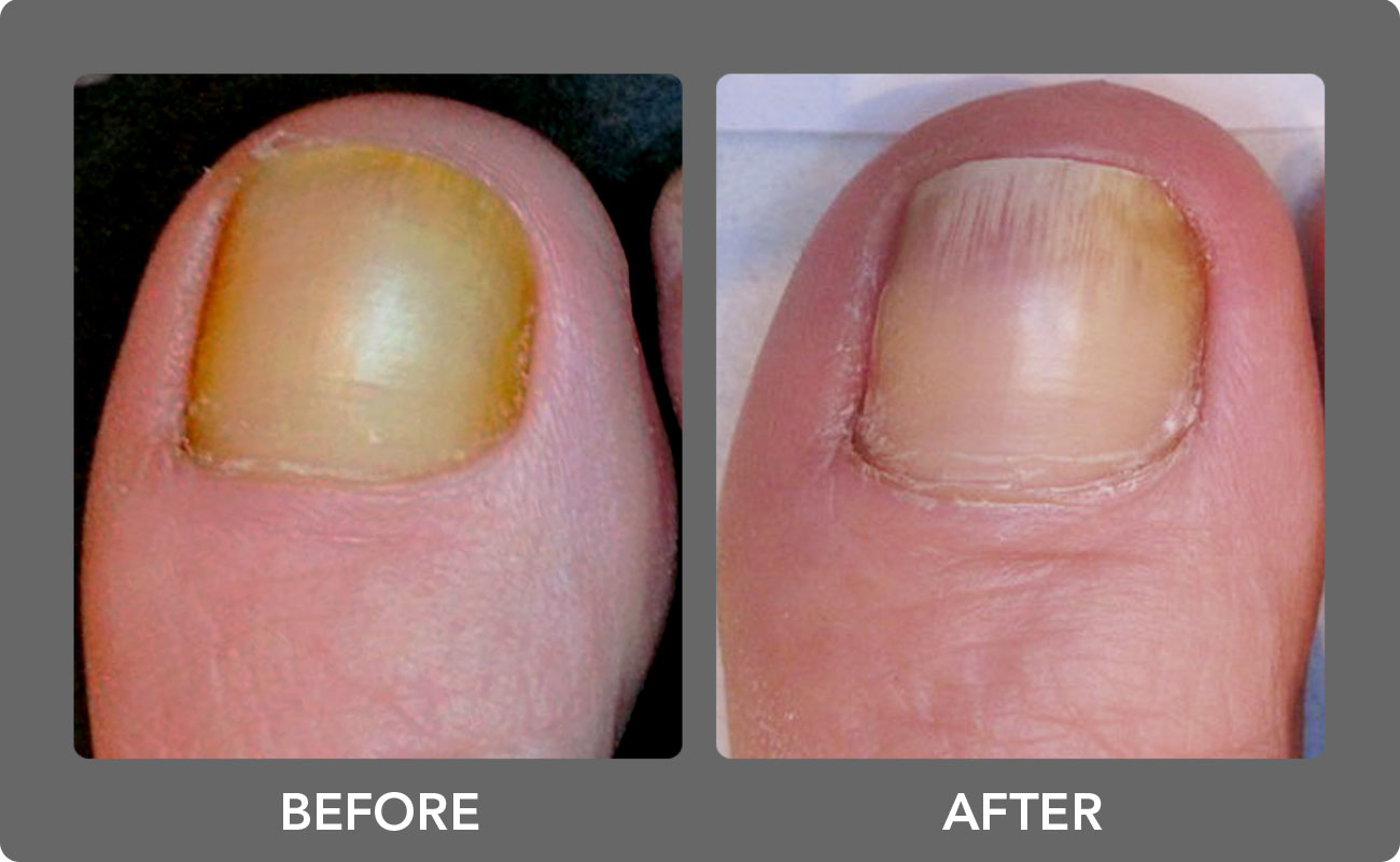 Toenail Fungus Laser Treatment Boca Raton Podiatrist