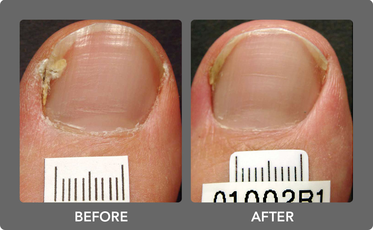 Toenail Fungus Laser Treatment | Boca Raton Podiatrist