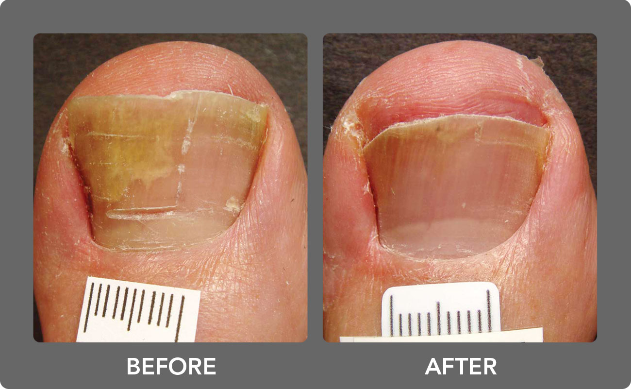 Toenail Fungus Laser Treatment | Boca Raton Podiatrist